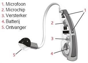 gehoorapparaten, zo werken ze